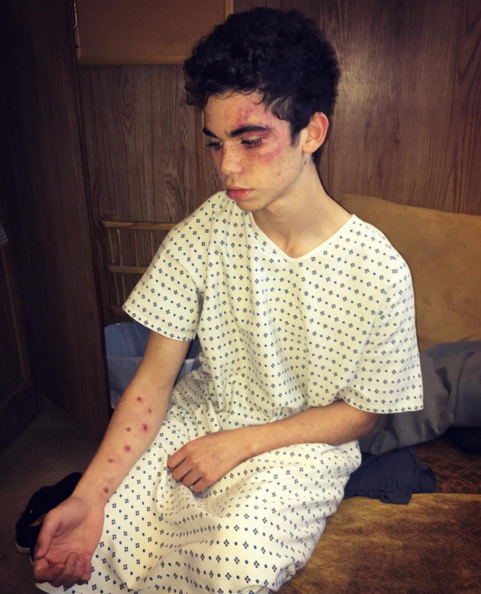 Cameron Boyce Code Black Guest Role Requires Scary Injury Makeup