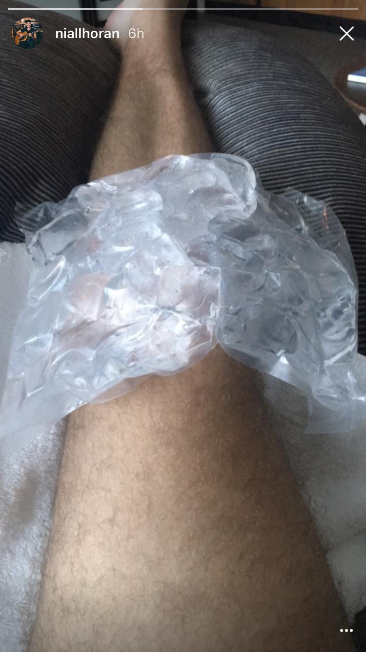 niall horan ice knee