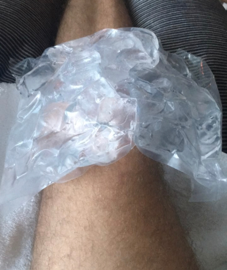 niall horan ice knee