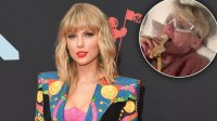 Taylor Swift Freaking Out Over Banana After Surgery