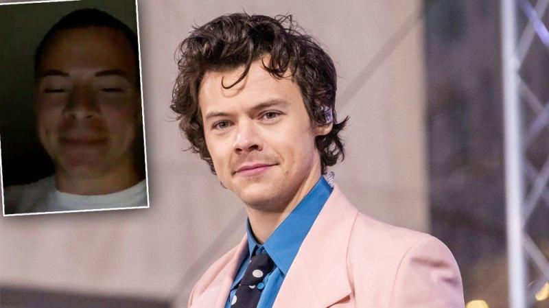 Harry Styles Bald
