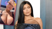 Fans Praise Kylie Jenner After She Shows Off Her Stretch Marks In New Pic